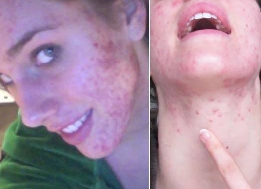 Болезнь акне: как развивается угревая сыпь?
