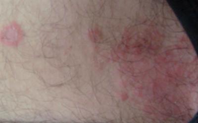Красные пятна на бедрах у мужчин и женщин: причины, лечение и фото
