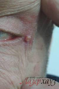 Возможные побочные эффекты и последствия удаления папиллом лазером – отзывы