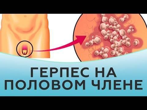 Волдыри на половом члене у мужчин: причины, лечение и профилактика