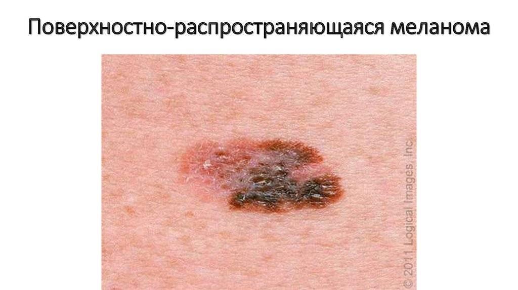 Меланома: 40 фото, симптомы и лечение