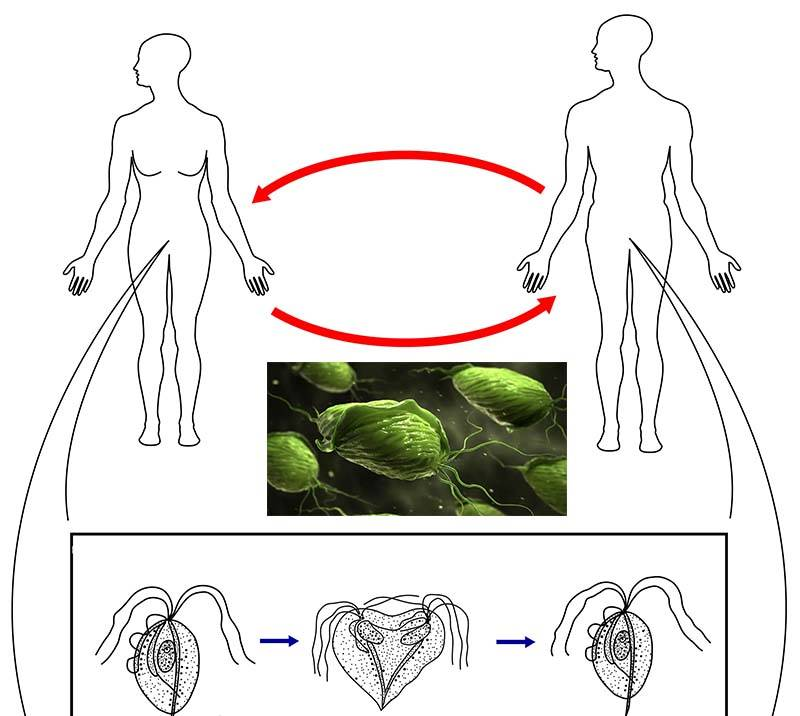 Трихомониаз у мужчин: симптомы и лечение