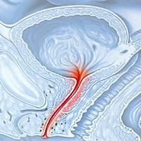Один из симптомов воспаления предстательной железы — выделения при простатите: описание, виды, фото