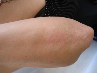 При каких заболеваниях могут появляться прыщи на коленях