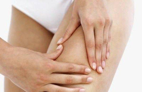 Наиболее распространённые причины прыщей на попе у женщин и их лечение
