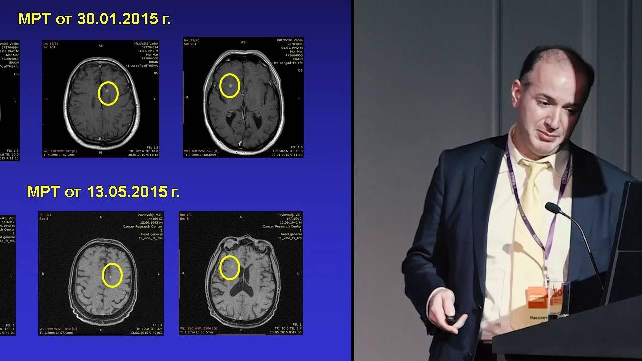 Метастазы рака в головном мозге