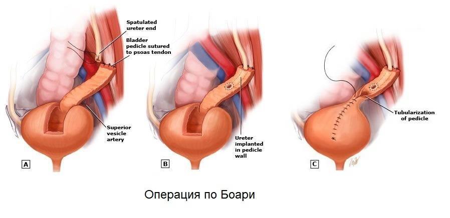 Камень в мочеточнике — симптомы, как вывести у женщин и мужчин