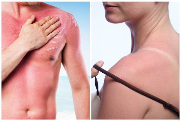 Солнечный ожог - лечение, первая помощь. средства профилактики и лечения солнечных ожогов