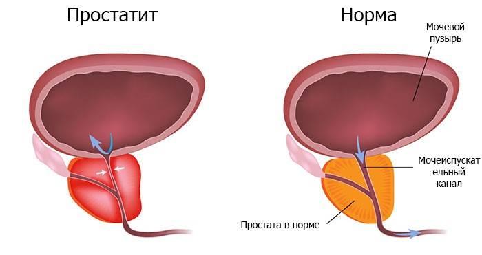 Самые эффективные народные средства для лечения аденомы простаты у мужчин