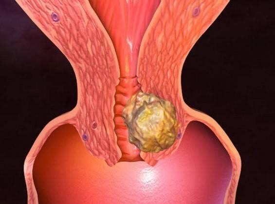 Эпидемия рака шейки матки: почему впч убивает женщин и как обезопасить себя
