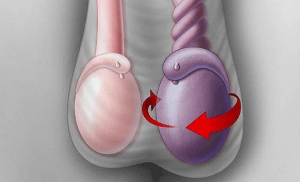 Сняли швы после гидатиды. перекрут гидатиды яичка, последствия, послеоперационный период, причины