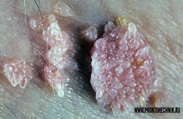 Опухоли перианальной области