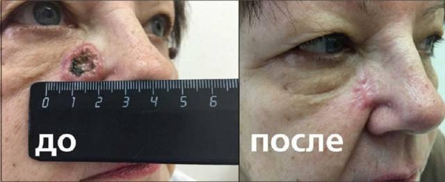 Фотодинамическая терапия для лечения и омоложения кожи