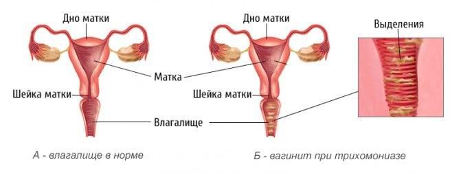 Чем лечить кольпит у женщин в домашних условиях. кольпит лечение народными средствами