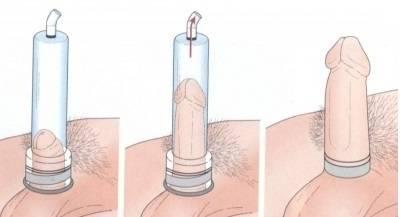 Как сделать насос своими руками: чертежи самых востребованных механизмов + 83 фото