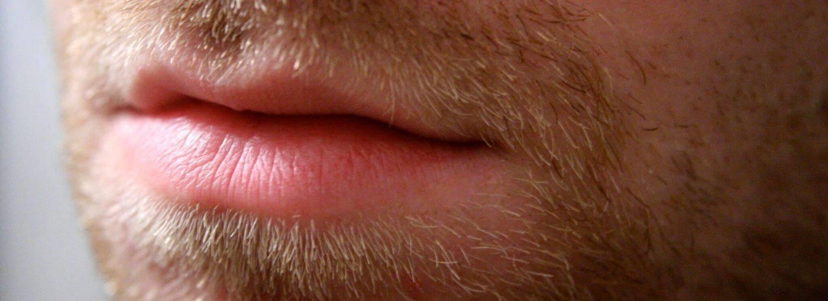 Что делать, чтобы после бритья не появлялись прыщики