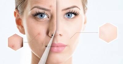 Эффективные средства с йодом от прыщей на лице: как быстро избавиться, способы применения