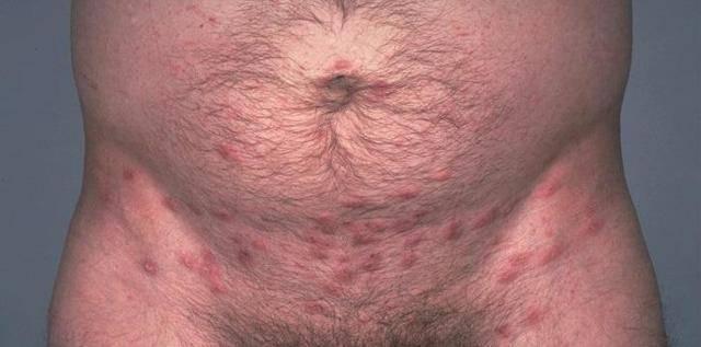 Высыпания в паху: фото, причины, лечение