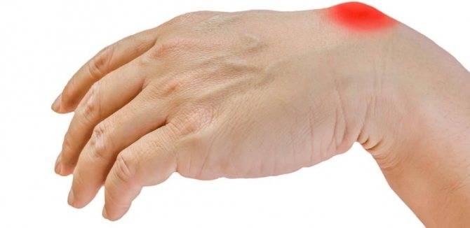 Уплотнение на внутренней стороне бедра у женщин: фото, причины, лечение