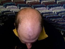 Причины, особенности и методы лечения очаговой алопеции у мужчин и женщин