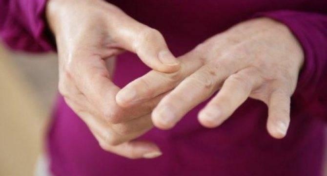 Как убрать папилломы с помощью народных средств