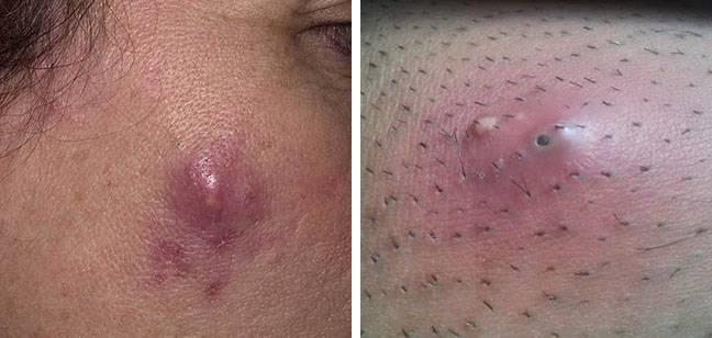 Причины появления фурункулов на теле, способы лечения нарывов