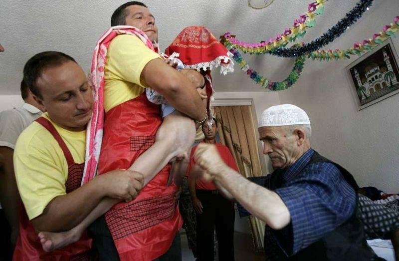 Виды обрезания крайней плоти у мужчин, методы и комбинация способов