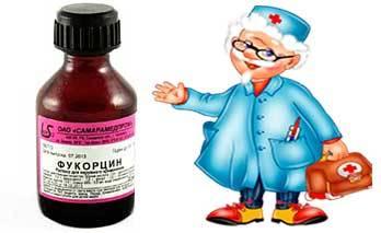 Фукорцин, инструкция по применению для детей — прочтите это!