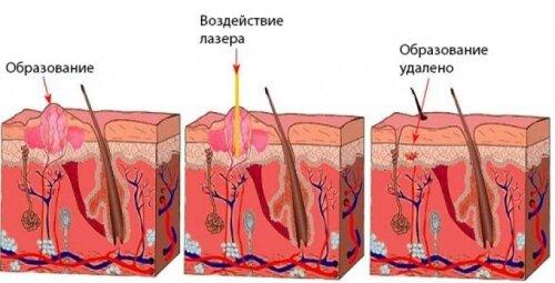 Процедура удаления папиллом лазером