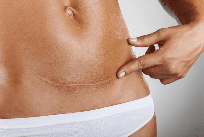 Народные средства лечения папилломы пищевода