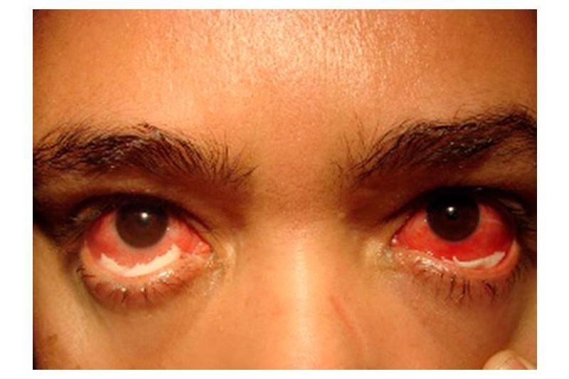 Гонорея у женщин — как распознать и вылечить инфекцию?
