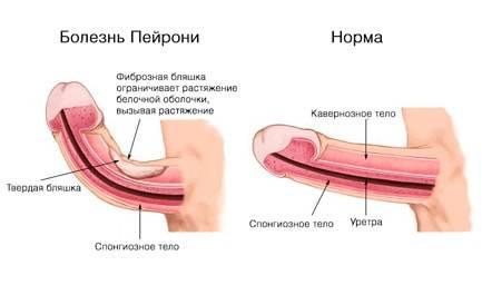 Болезнь пейрони – симптомы и лечение
