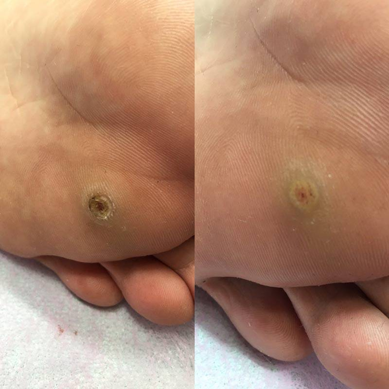 По каким причинам может болеть папиллома