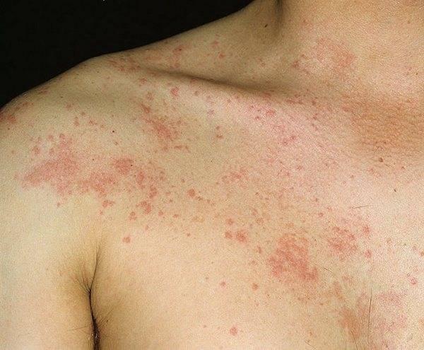 Лечение крапивницы на нервной почве