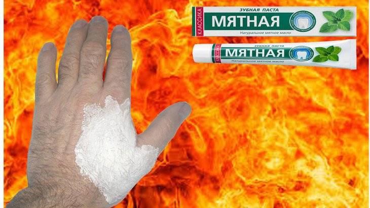 Советы и рекомендации, что делать при ожоге горячей водой