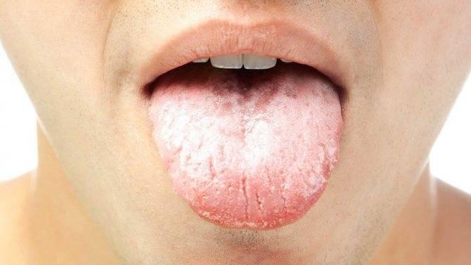 Прыщи на языке: причины возникновения и методы лечения