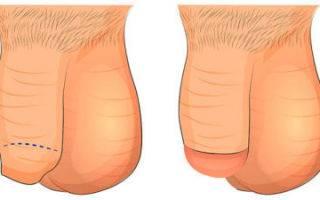 Обрезание у мужчин: отзывы после операции, зачем это нужно