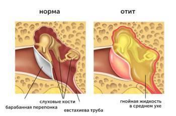 Способы удаления папилломы в области уха