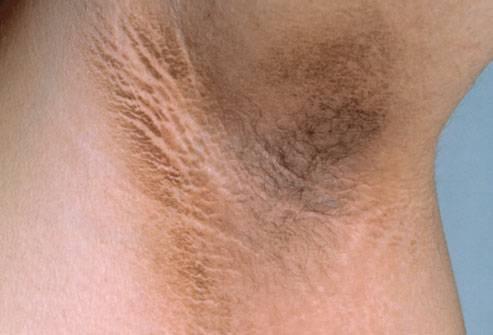 Пятна в паху у мужчин: фото, причины, лечение