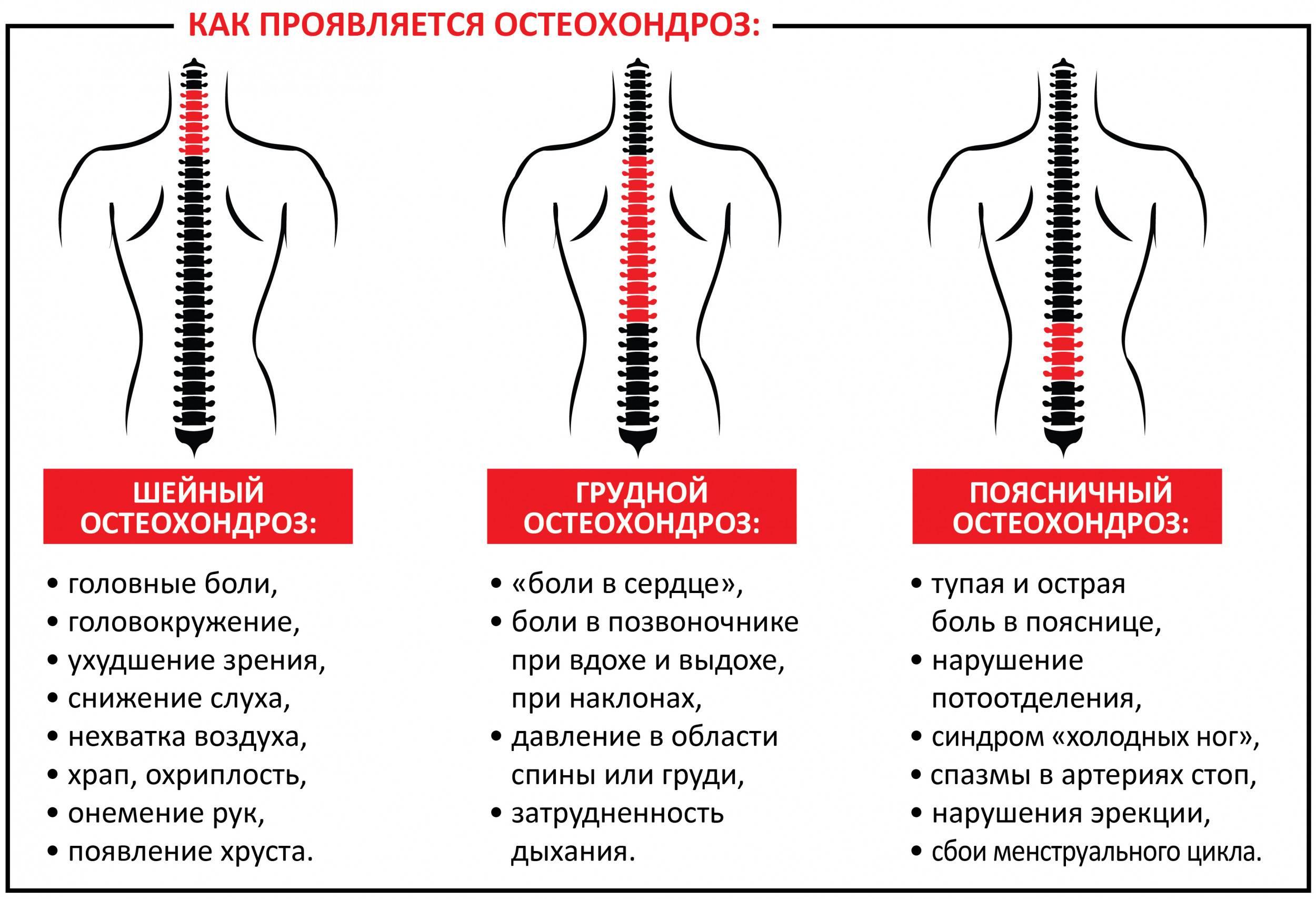 Болит спина в области поясницы у мужчин