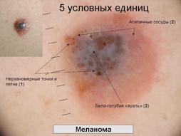 Меланома кожи: прогнозы жизни