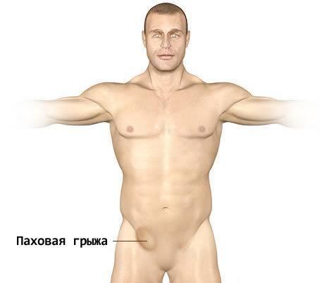 Чем и как лечить опрелости в паху у мужчин, как быстро можно восстановить раздраженную кожу?