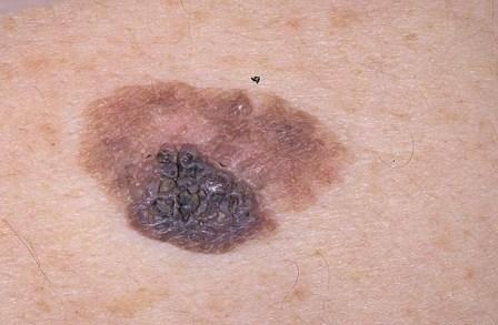 Меланома в начальной стадии