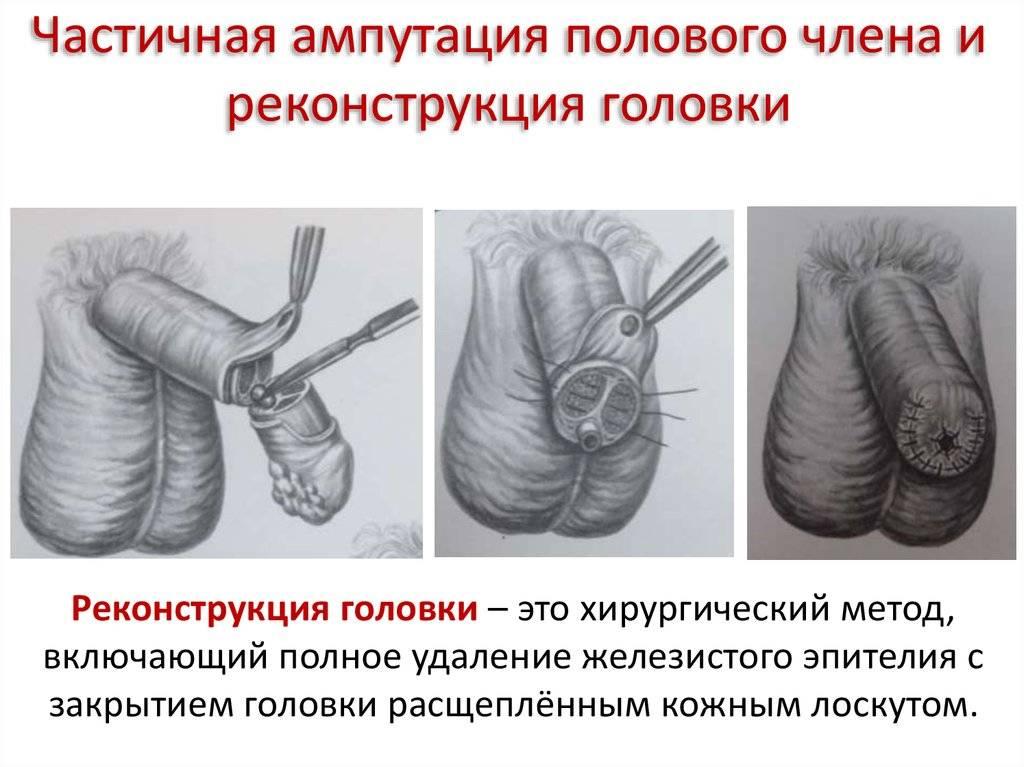 Фаллопластика. воссоздание полового члена.
