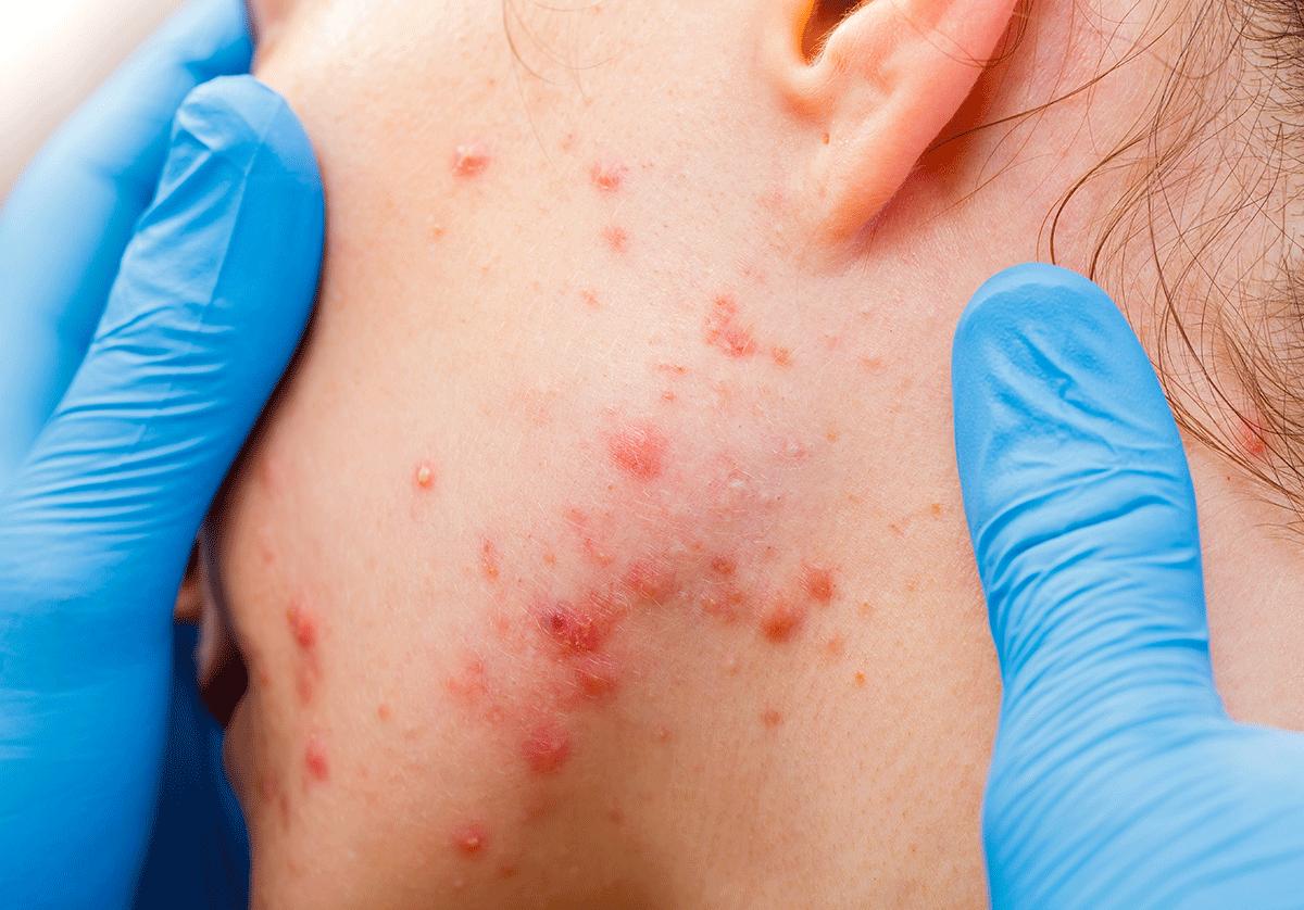Лечение угревой сыпи антибиотиками