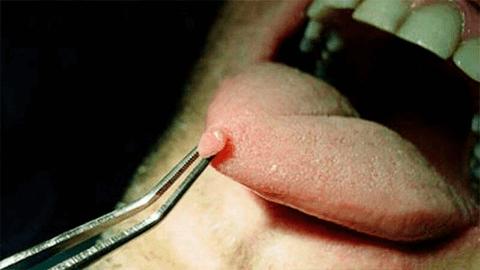 Почему появляется висячая папиллома на тонкой ножке? лечебные меры