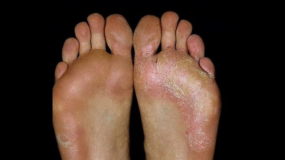 Грибок на ногах. как выглядит, почему возникает и как его лечить?