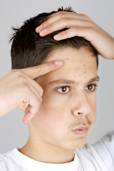 Причины появления прыщей в волосах на голове