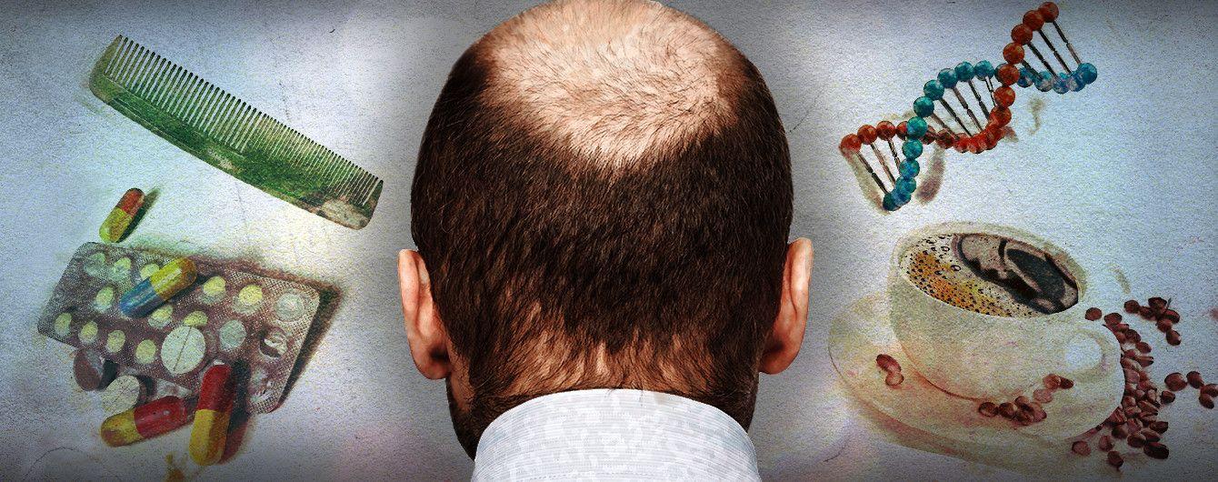 Мужское облысение в раннем возрасте, причины и методы лечения