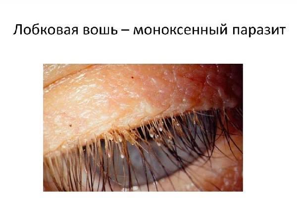 Лобковые вши